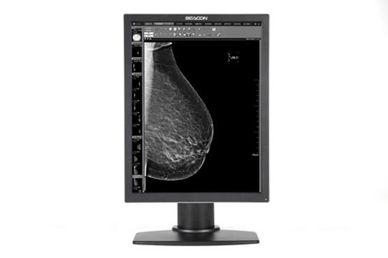 Черно-белый медицинский дисплей G52S+