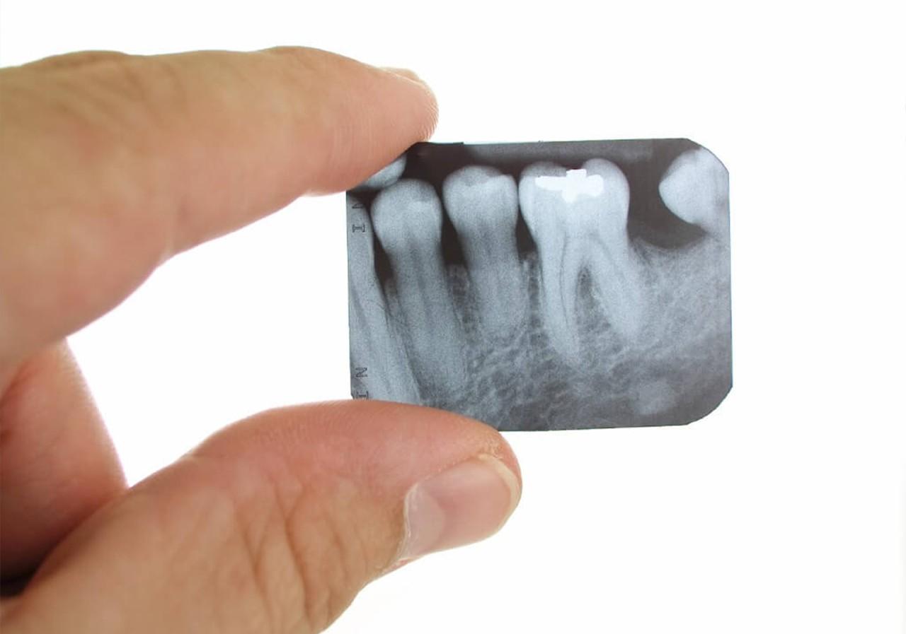 Рентген у стоматолога. Виды рентгеновских снимков зубов